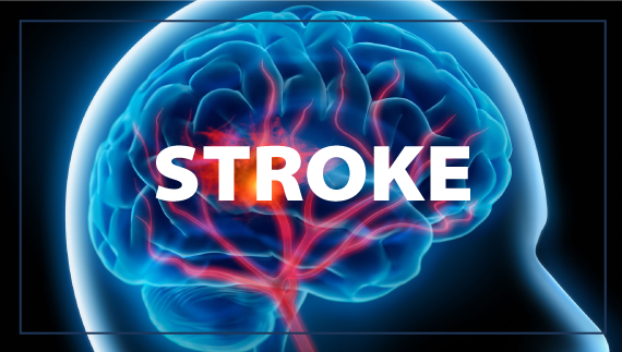 Stockhouse – Algernon Pharmaceuticals Makes Major Headway Toward Clinical Trials for Treatment of Stroke